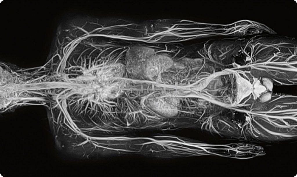 Resonancia Magnética imagen cuerpo humano completo